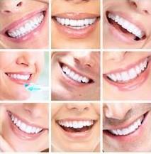 瑞尔齿科种植牙:即刻种牙 立绽笑容