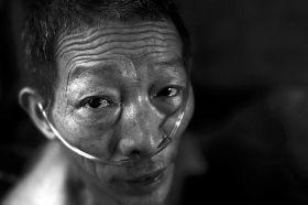 7月26日,武冈市文坪镇花园村,61岁的姚作元坐在乡村医院的病床上,面色苍白。当地医院已经宣告他的病情无法医治。   图/记者辜鹏博